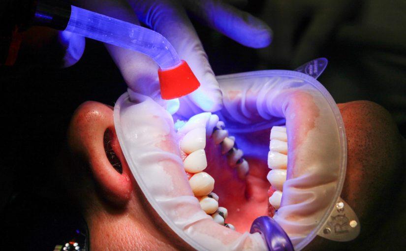 Zły sposób odżywiania się to większe braki w jamie ustnej oraz również ich utratę